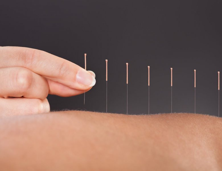 Does Acupuncture Fertility Prove To Be Productive