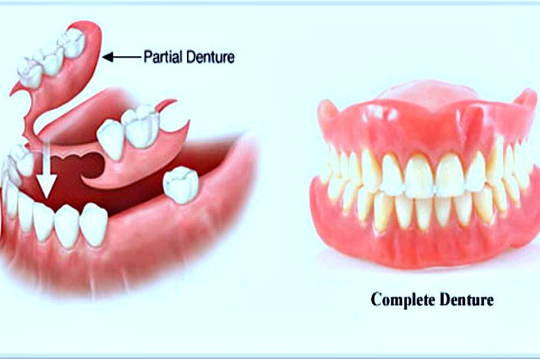 What Services Shall We Get In Denture Clinics?